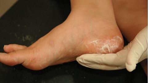 Можно ли убить грибок ногтей доместосом