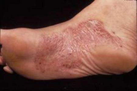 Симптомы, виды, лечение псориаза на ногах