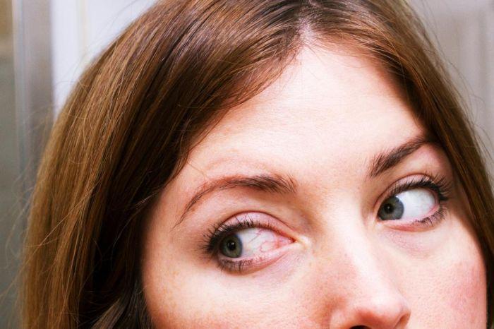 Красные глаза у женщины