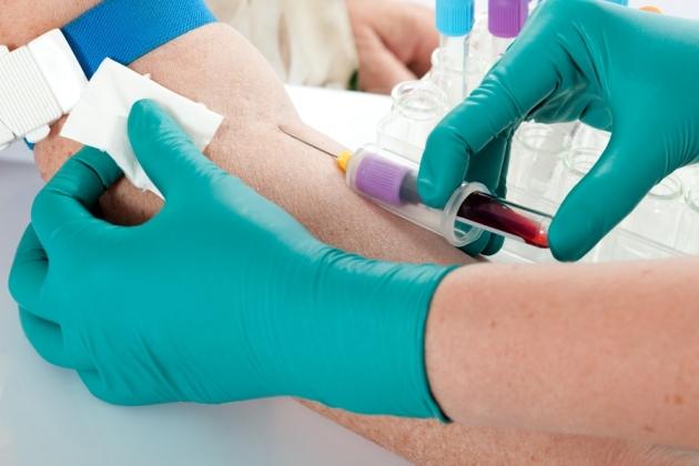 диагностика гемосидероза
