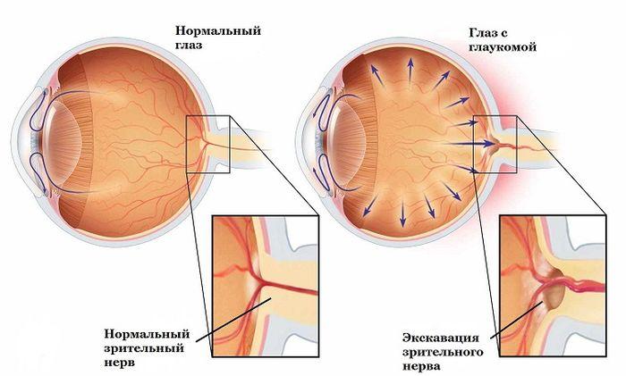 Глаукома - заболевание глаз