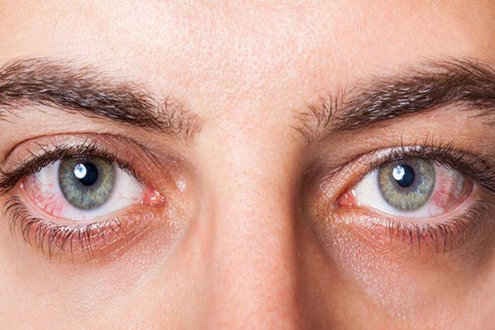 Заболевания склер глаз